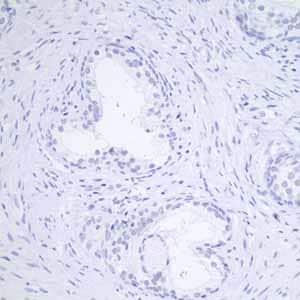 Immunohistochemistry (Formalin/PFA-fixed paraffin-embedded sections) - Anti-GCDFP 15 antibody [EP1582Y] (ab62363)
