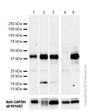 Western blot - Anti-beta Dystroglycan antibody [EP2200Y] (ab62373)