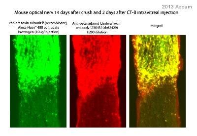 Immunohistochemistry (Frozen sections) - Anti-beta subunit Cholera Toxin antibody [23043] (ab62429)