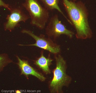 Immunocytochemistry/ Immunofluorescence - Anti-TWEAKR antibody (ab62496)