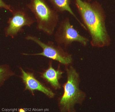 Immunocytochemistry/ Immunofluorescence - Anti-TWEAKR/FN14 antibody (ab62496)