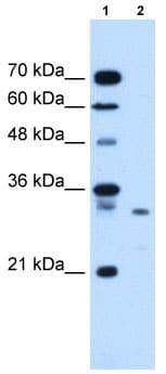 Western blot - Anti-Syntenin antibody (ab62530)