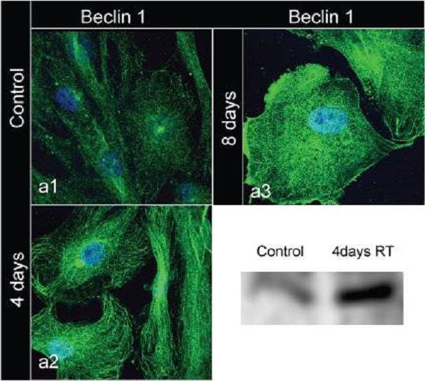 Immunocytochemistry/ Immunofluorescence - Anti-Beclin 1 antibody (ab62557)