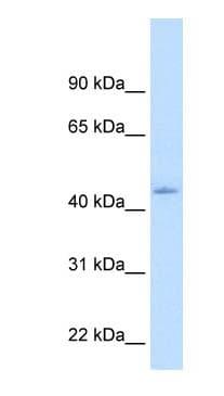 Western blot - Anti-Constitutive androstane receptor antibody (ab62590)