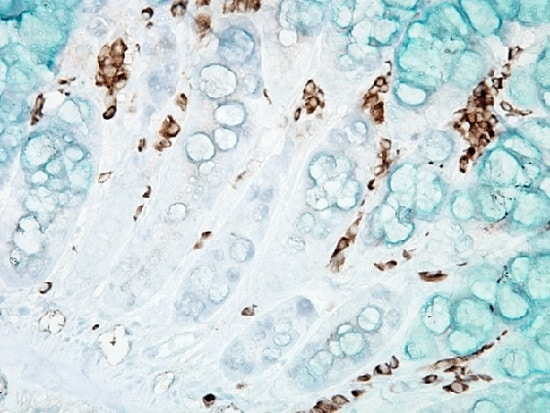 Immunohistochemistry (Formalin/PFA-fixed paraffin-embedded sections) - Anti-DNA/RNA Damage antibody [15A3] (ab62623)