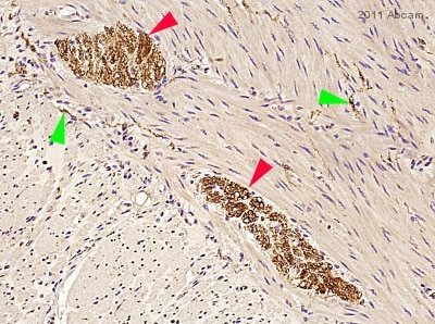Immunohistochemistry (Formalin/PFA-fixed paraffin-embedded sections) - Anti-Tau antibody (ab62639)