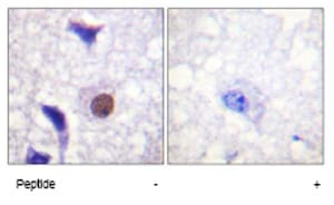 Immunohistochemistry (Formalin/PFA-fixed paraffin-embedded sections) - Anti-Histone H3.3 antibody (ab62642)