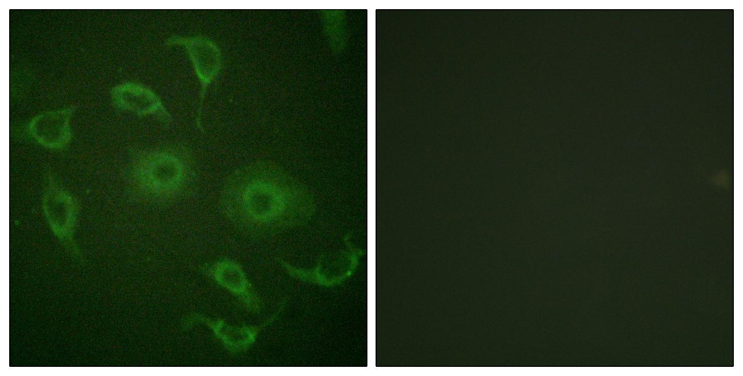 Immunofluorescence - Anti-Interferon alpha/beta receptor 1 antibody (ab62693)