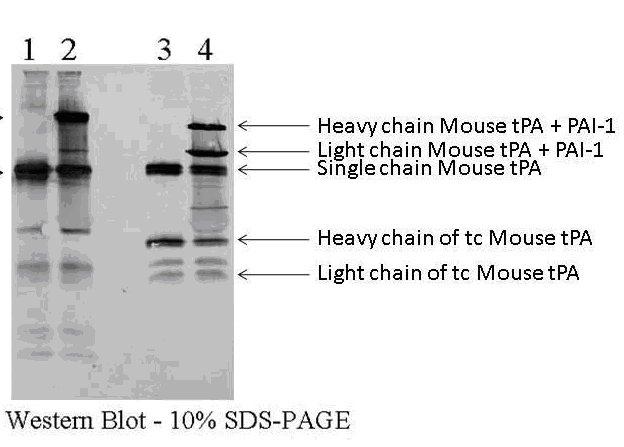Western blot - Anti-TPA Tissue Plasminogen Activator antibody (ab62763)