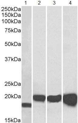 Western blot - Anti-Superoxide Dismutase 1 antibody (ab62800)