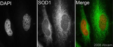 Immunocytochemistry/ Immunofluorescence - Anti-Superoxide Dismutase 1 antibody (ab62800)