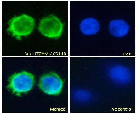Immunocytochemistry/ Immunofluorescence - Anti-CD11b antibody (ab62817)