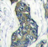 Immunohistochemistry (Formalin/PFA-fixed paraffin-embedded sections) - Anti-Stanniocalcin 2/STC-2 antibody (ab63057)