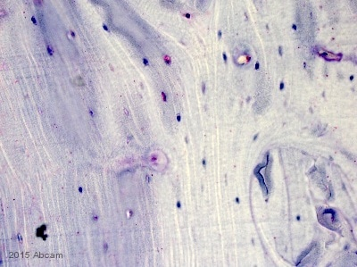 Immunohistochemistry (Formalin/PFA-fixed paraffin-embedded sections) - Anti-Sclerostin antibody (ab63097)