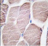 Immunohistochemistry (Formalin/PFA-fixed paraffin-embedded sections) - Anti-PYGM antibody (ab63158)