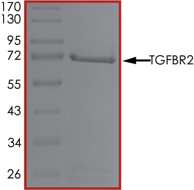 SDS-PAGE - Recombinant human TGF beta Receptor II protein (ab63173)