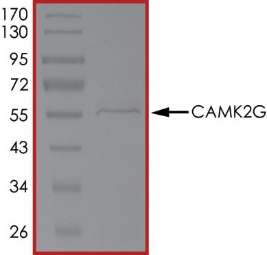 SDS-PAGE - Recombinant human CamKII gamma protein (ab63189)