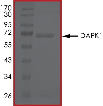 SDS-PAGE - Recombinant human DAP Kinase 1 protein (ab63191)