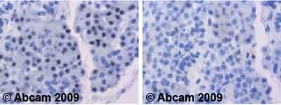 Immunohistochemistry (Formalin/PFA-fixed paraffin-embedded sections) - Anti-FOXO4/AFX antibody (ab63254)