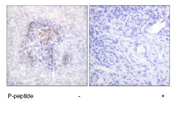 Immunohistochemistry (Formalin/PFA-fixed paraffin-embedded sections) - Anti-Aconitase 1/ACO1 (phospho S138) antibody (ab63260)