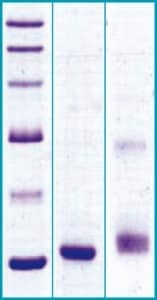 SDS-PAGE - Recombinant Human GPHA2 protein (ab63272)