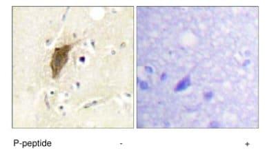 Immunohistochemistry (Formalin/PFA-fixed paraffin-embedded sections) - Anti-Mylc2b (phospho S18) antibody (ab63479)