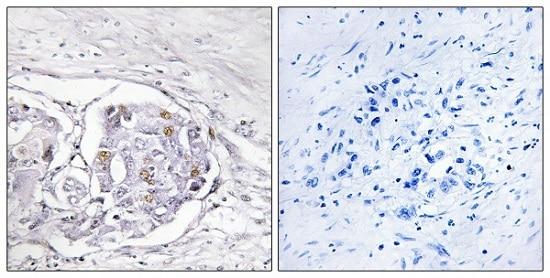 Immunohistochemistry (Formalin/PFA-fixed paraffin-embedded sections) - Anti-Progesterone Receptor antibody (ab63605)