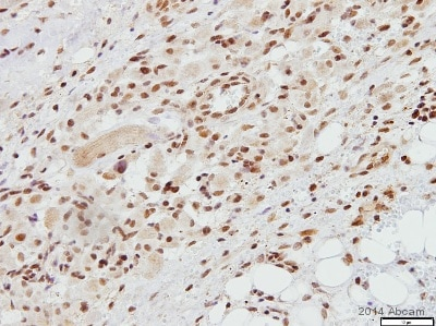 Immunohistochemistry (Formalin/PFA-fixed paraffin-embedded sections) - Anti-TATA binding protein TBP antibody - Nuclear Loading Control and ChIP Grade (ab63766)