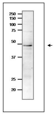 Western blot - Anti-Rad51 antibody (ab63798)