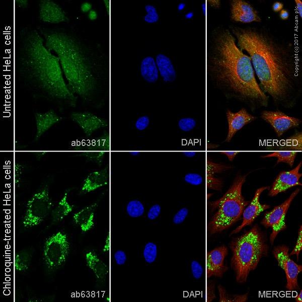 Immunocytochemistry/ Immunofluorescence - Anti-LC3B antibody (ab63817)