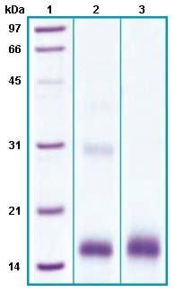 SDS-PAGE - Recombinant Human sPLA2-X protein (His tag) (ab63847)