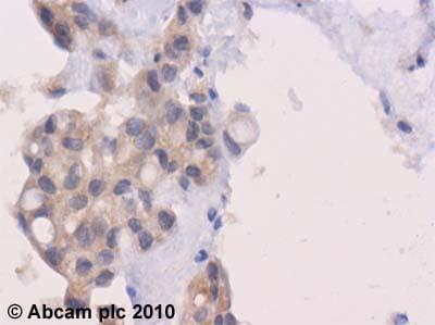 Immunohistochemistry (Formalin/PFA-fixed paraffin-embedded sections) - Anti-Wnt1 antibody (ab63934)