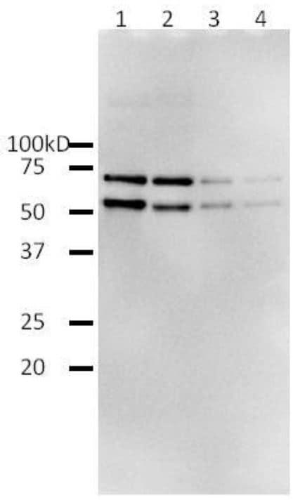 Western blot - Recombinant HIV1 Reverse Transcriptase protein (ab63979)