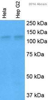 Western blot - Anti-CD41 antibody (ab63983)