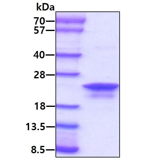 SDS-PAGE - Recombinant Human Anterior Gradient 2 protein (ab64013)