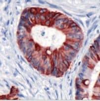Immunohistochemistry (Formalin/PFA-fixed paraffin-embedded sections) - Anti-Cytokeratin 20 antibody [SP33], prediluted (ab64091)