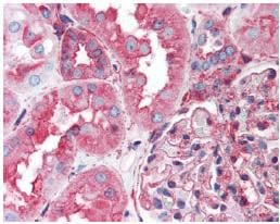 Immunohistochemistry (Formalin/PFA-fixed paraffin-embedded sections) - Anti-HSP90B2P antibody (ab64182)