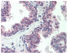 Immunohistochemistry (Formalin/PFA-fixed paraffin-embedded sections) - Anti-CBLN1 antibody (ab64184)