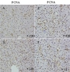 Immunohistochemistry (Formalin/PFA-fixed paraffin-embedded sections) - 10x Citrate Buffer pH 6.0 (ab64214)
