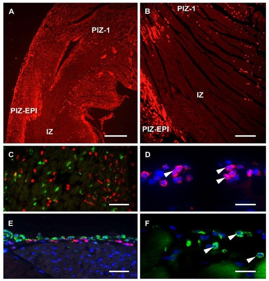 Immunohistochemistry (Formalin/PFA-fixed paraffin-embedded sections) - Protein Block (ab64226)
