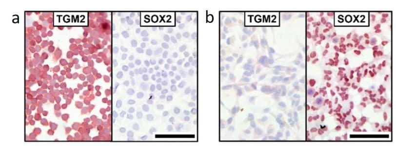 Immunohistochemistry (Frozen sections) - AEC SubstrateKit (ab64252)