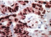 Immunohistochemistry (Formalin/PFA-fixed paraffin-embedded sections) - Anti Mouse HRP/DAB Detection Kit (ab64259)