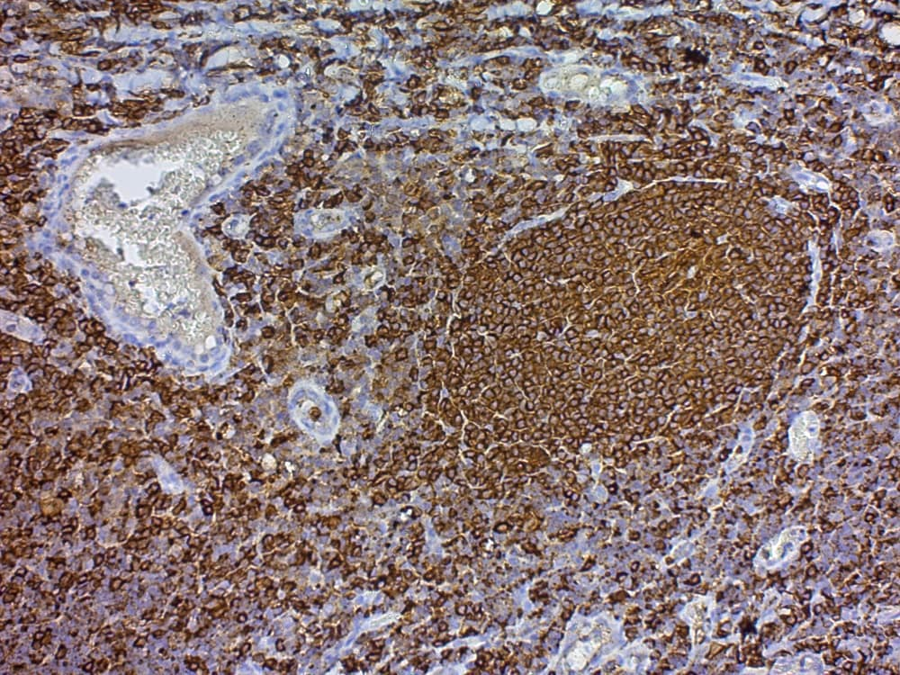 Immunohistochemistry (Formalin/PFA-fixed paraffin-embedded sections) - Streptavidin Peroxidase (Ready to Use) (ab64269)