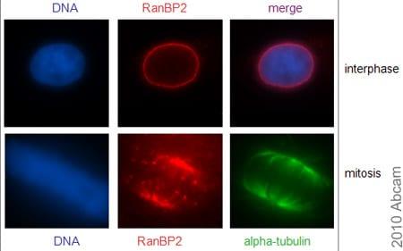 Immunocytochemistry/ Immunofluorescence - Anti-RanBP2 antibody (ab64276)