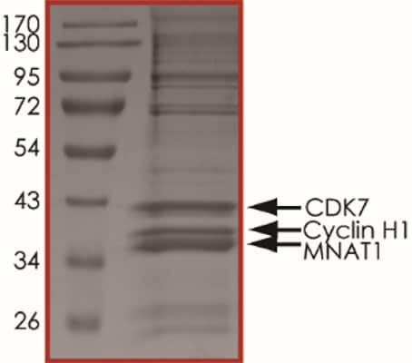 SDS-PAGE - Recombinant human CDK7 + Cyclin H + MNAT1 protein (ab64303)