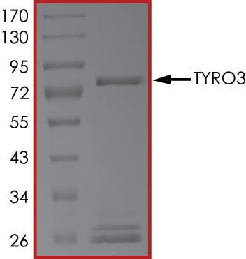 SDS-PAGE - Recombinant human TYRO3 protein (ab64304)
