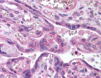 Immunohistochemistry (Frozen sections) - Anti-CARD14 antibody (ab64366)