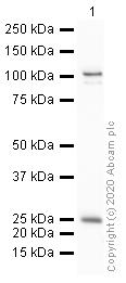 Western blot - Anti-Mineralocorticoid Receptor antibody (ab64457)