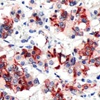 Immunohistochemistry (Formalin/PFA-fixed paraffin-embedded sections) - Anti-Prolactin/PRL antibody, prediluted (ab64485)