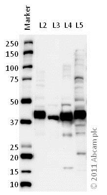 Western blot - Anti-Glutamine Synthetase antibody [3B6] - BSA and Azide free (ab64613)